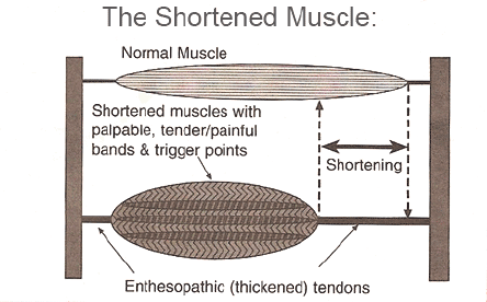 The Shortened Muscle IMS