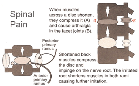 Spinal Pain IMS