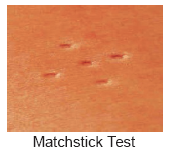 Matchstick Test IMS
