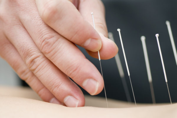 South-city-acupuncture-physiotherapists